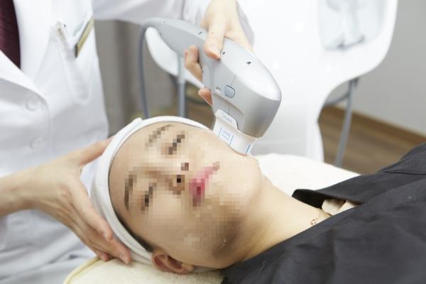 Korean doctor doing HIFU Laser Facelift SHURINK on patient