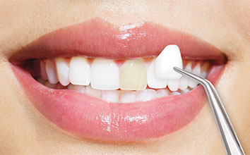 Procedure of getting porcelain veneers in Korea