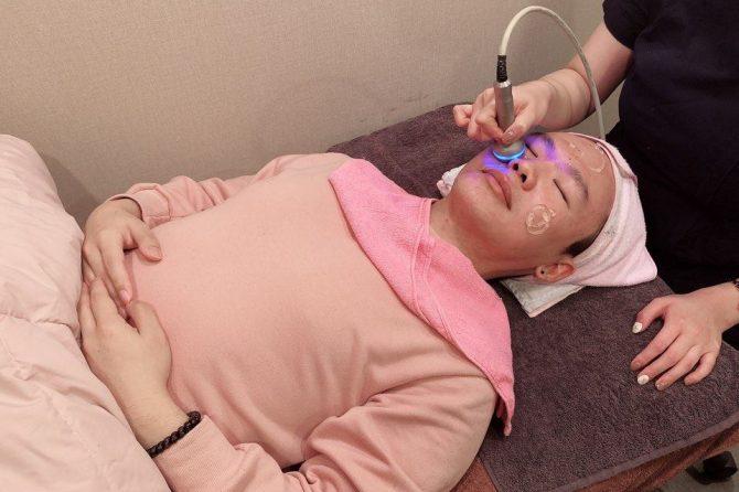 janson getting acne scar treatment in korea