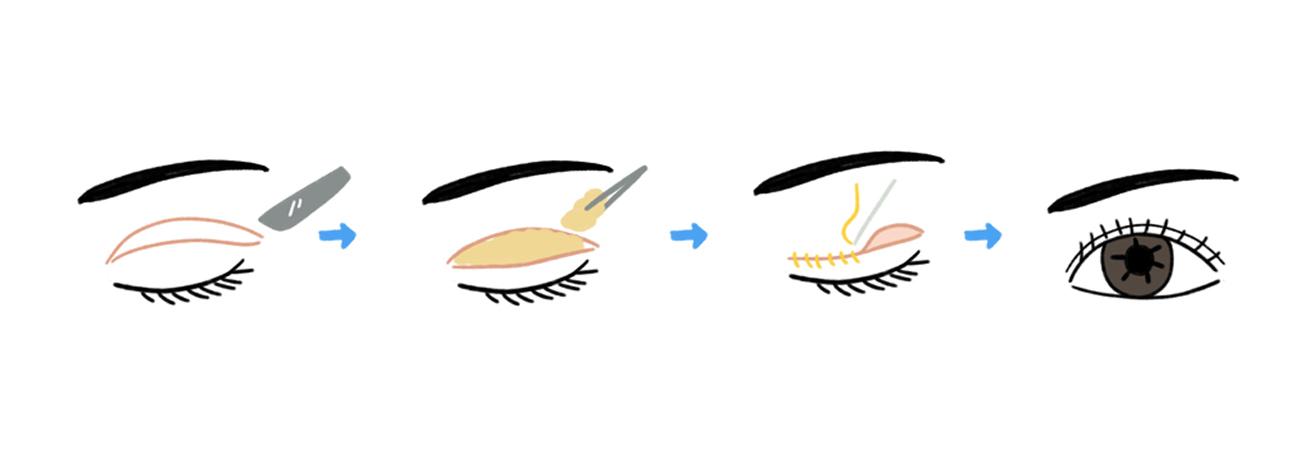 full incisional method korea
