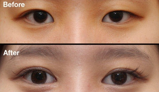 Double Eyelid Surgery in Korea: What You Need to Know