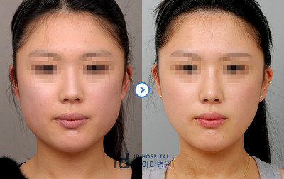 Square Jaw Botox Before After 3