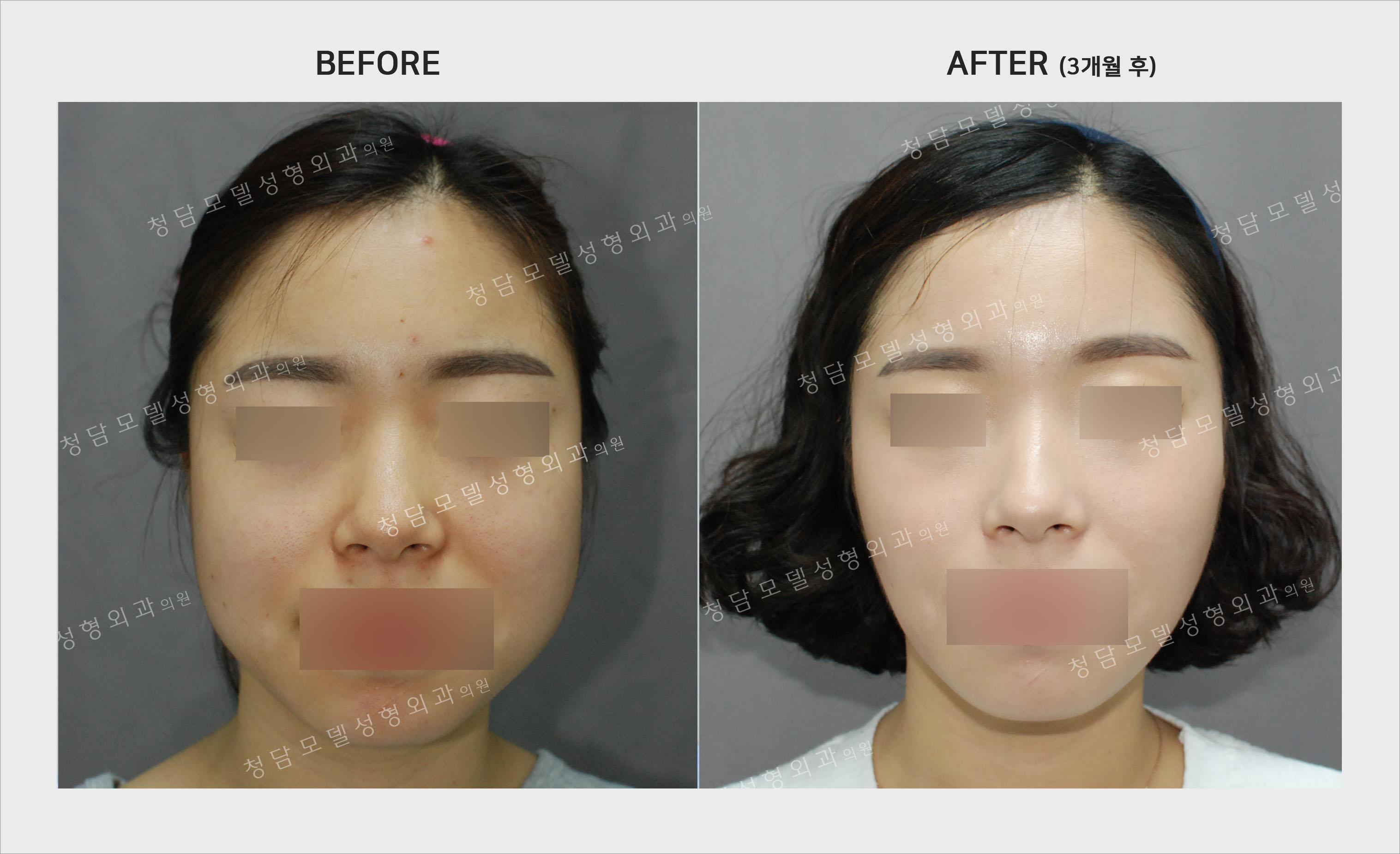 square jaw botox before after