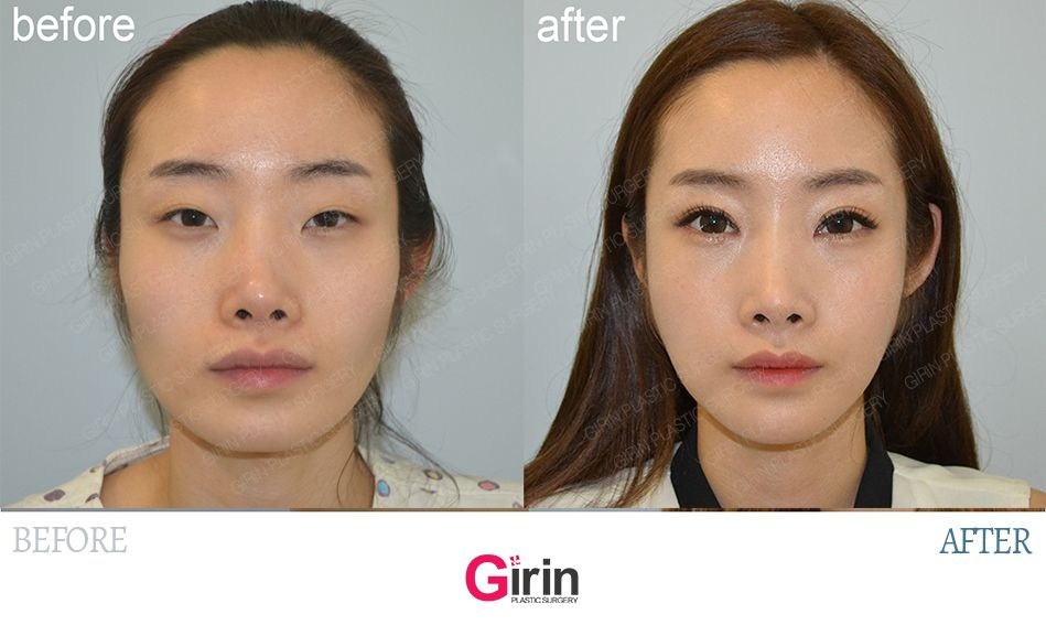 Everything About Getting Eye Plastic Surgery In Korea