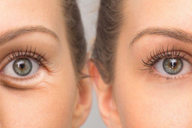 eye plastic surgery in korea