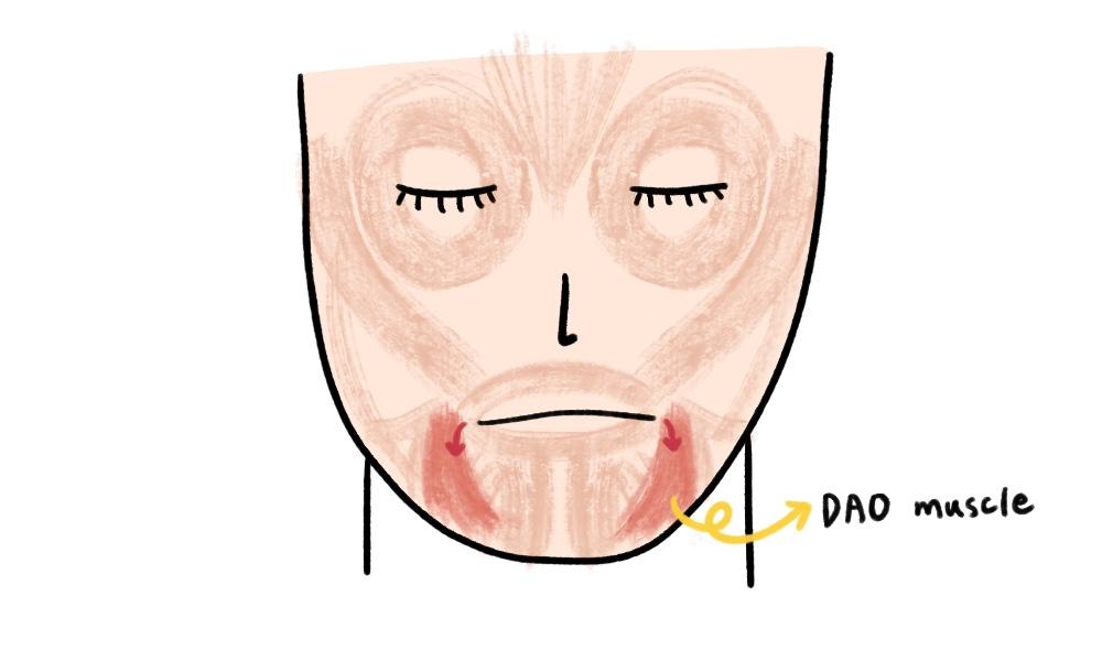 mouth corner lift botox