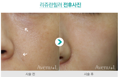 rejuran healer korea before after