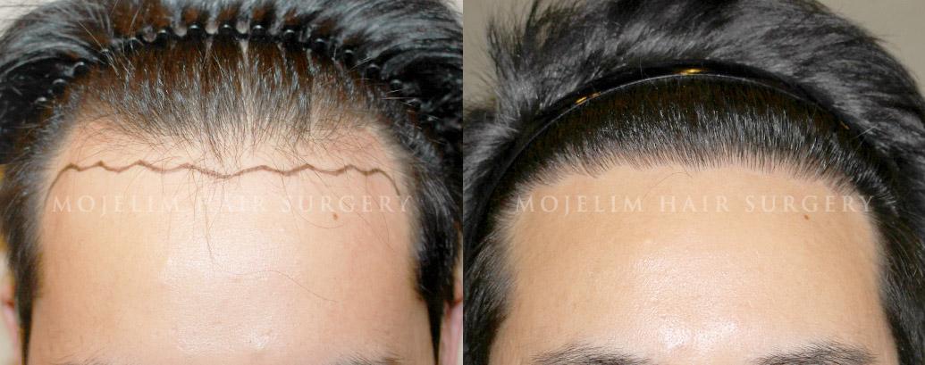 hair transplant korea before after 1