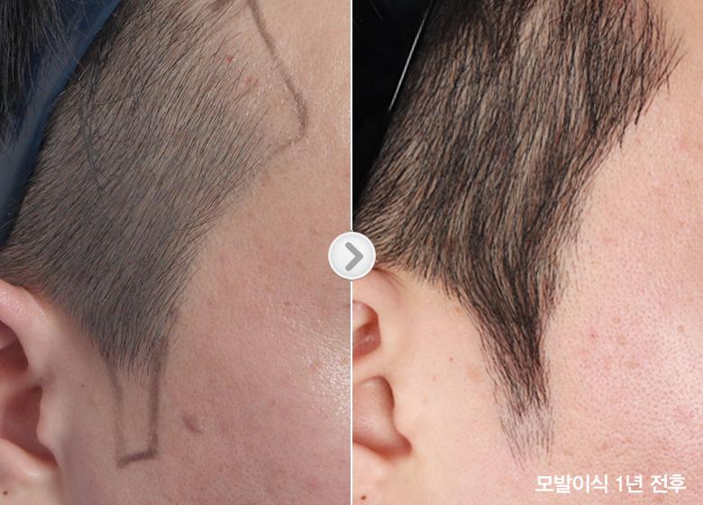 hair transplant korea before after 2