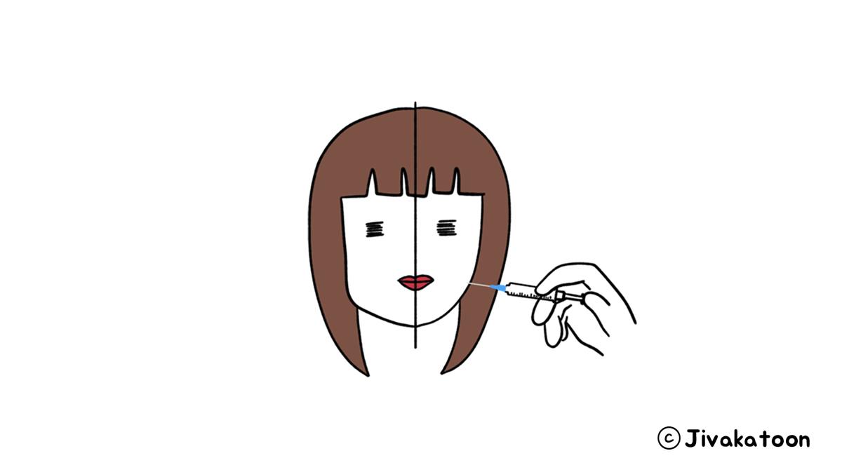 jaw botox v-line korea