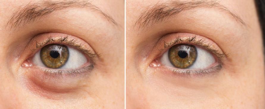 Eyebag surgery in Korea - Removal and repositioning - JIVAKA