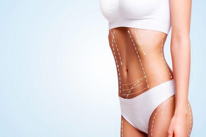 liposuction korea