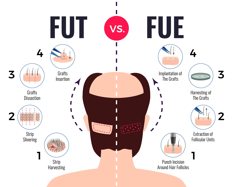 fut vs fue