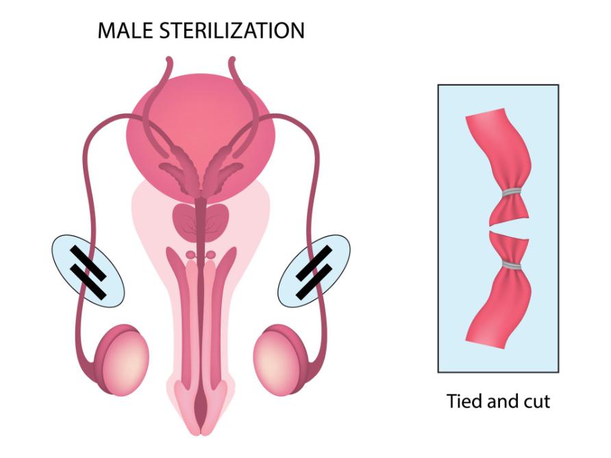 diagram-of-vasectomy-procedure