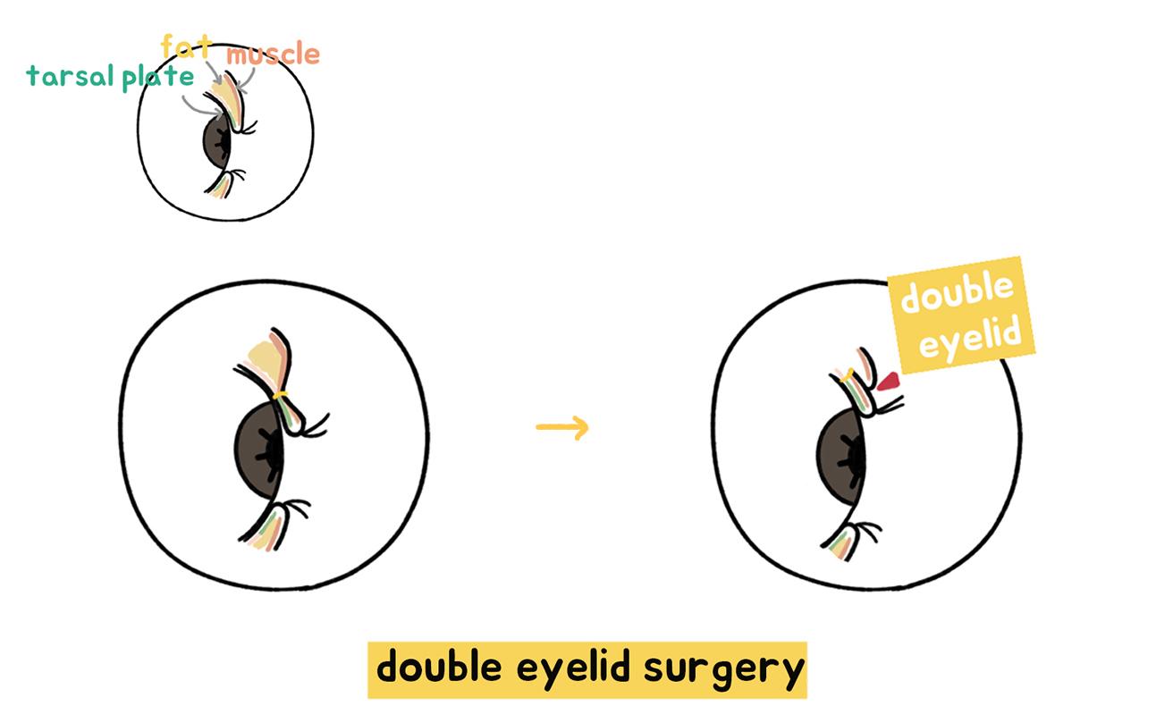 korean-double-eyelid-surgery