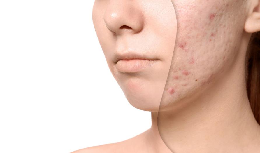 Acne Scar Treatment In Korea