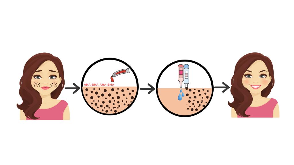 The step by step procedure for Aqua Peel in Korea.