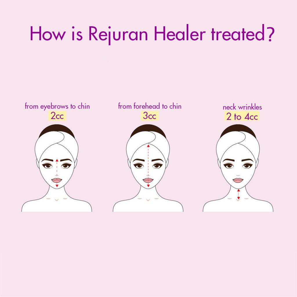 rejuran healer skin booster